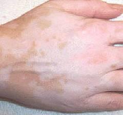 Come applicare darsonval a eczema